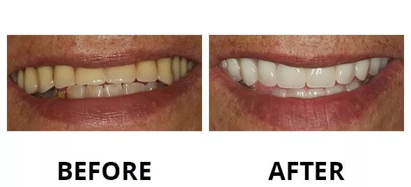 cosmetic dentist tx