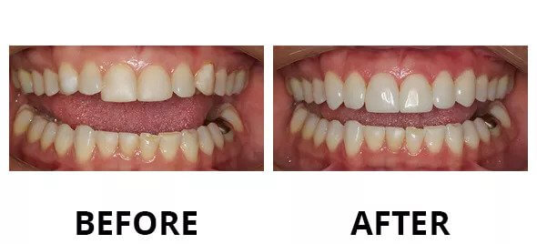 cosmetic dentistry austin