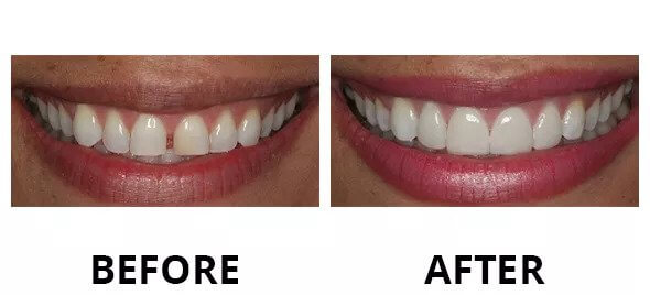 best cosmetic dentistry austin,tx